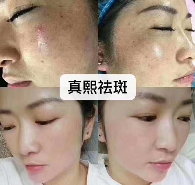 麻城美容祛斑培训