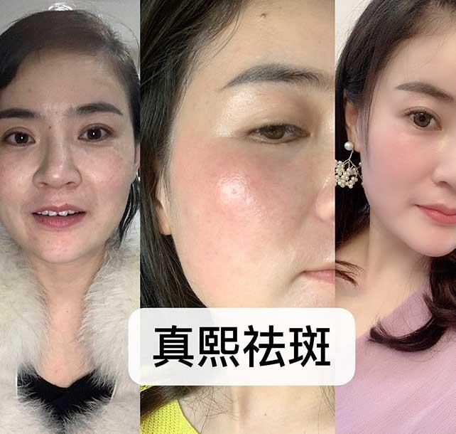 麻城美容祛斑祛痘培训班